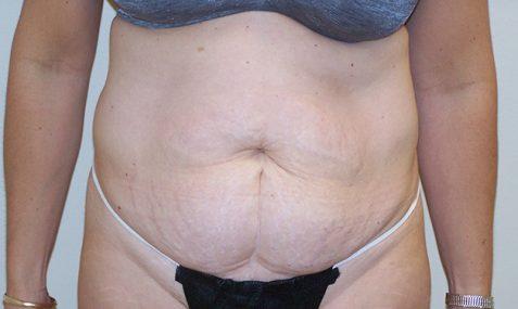 Tummy Tuck Center For Plastic Surgery
